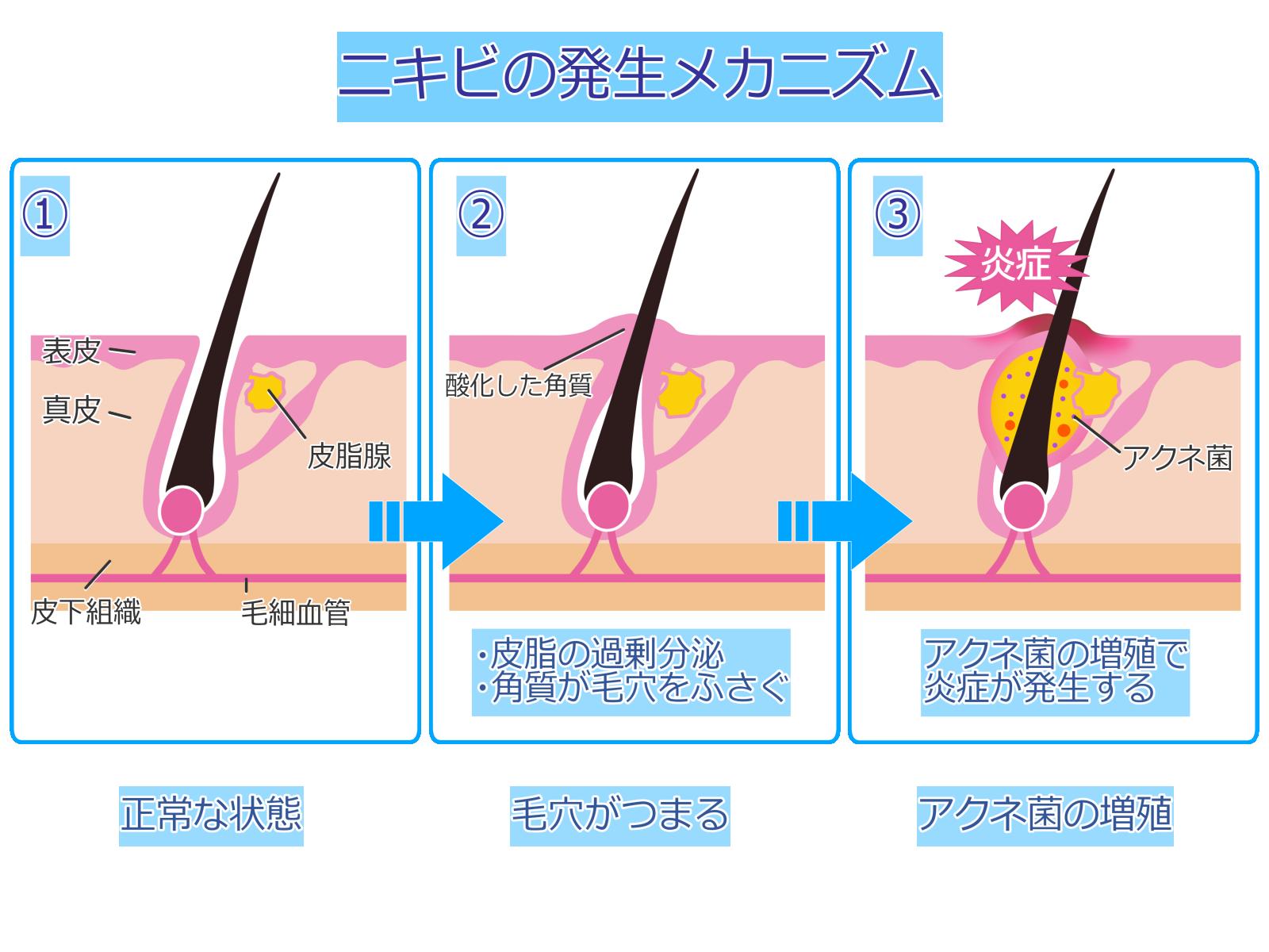 ニキビ 原因 発生メカニズム 皮脂 アクネ菌 毛穴